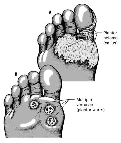 Callus and Warts Medical Illustration