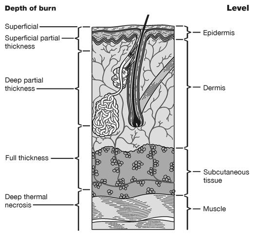 Skin Burns by Depth Medical Illustration